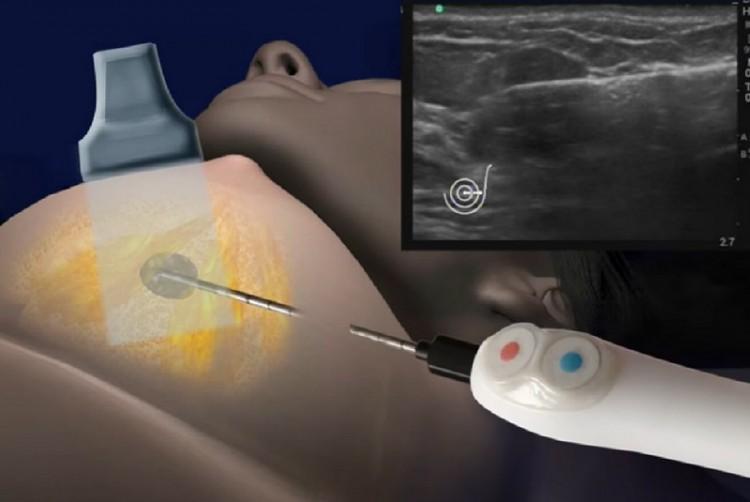 Szenzáció! Kezdődhetne a mellrák műtét nélküli kezelése