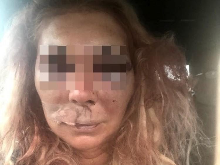 Összeverte barátnőjét, kirúgta a honvédség a tartalékos katonát