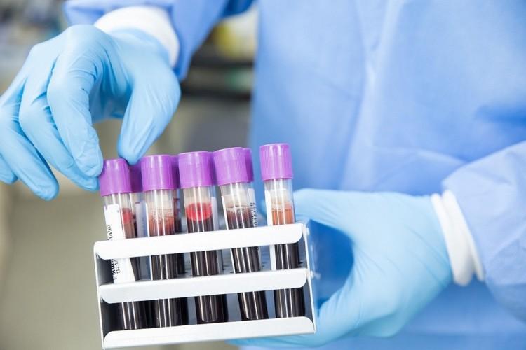 187 azonosított fertőzött van Magyarországon