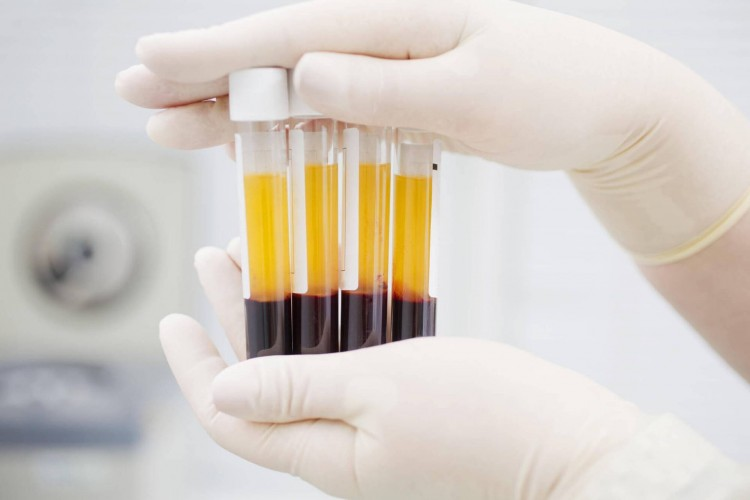 Eddig 13 koronavírusos betegnél volt sikeres a vérplazma-terápia